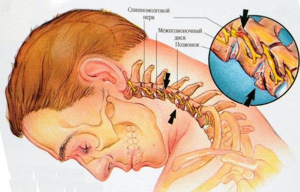 - СветВМир.ру - Интересный познавательный журнал. Развитие познания - 8 упражнений от шейного остеохондроза