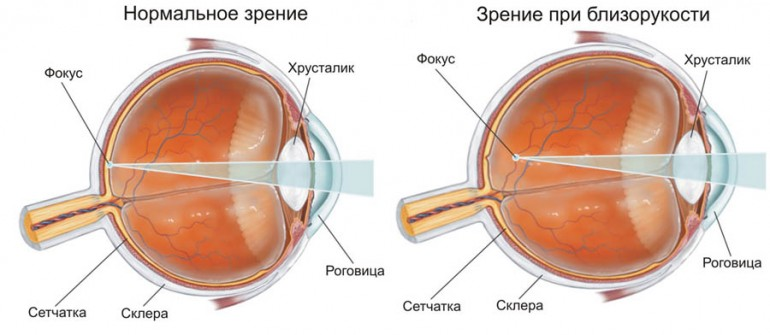 Зрение-при-близорукости