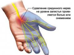 Болит запястье или туннельный синдром: описание, лечение, упражнения