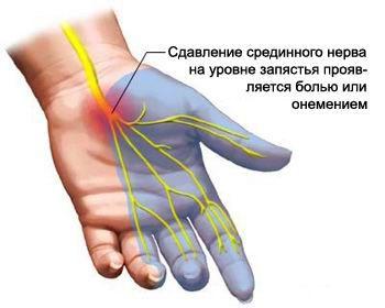 Болит запястье или туннельный синдром: описание, лечение ...