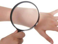 Чем вызваны заболевания кожи человека?