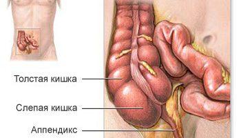 """appendicitis - СветВМир.ру - Интересный познавательный журнал. Развитие познания - """"Аппендикс воспаляется при обильном мясном питании. Кишечник воспринимает термообработанную пищу как токсин"""""""